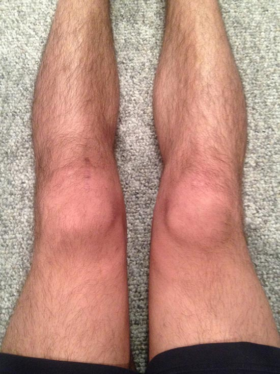 post acl surgery exercises pdf