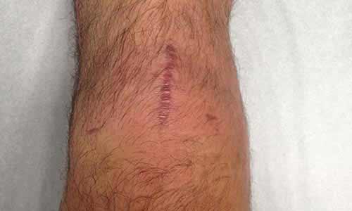 hard bump patellar tendon